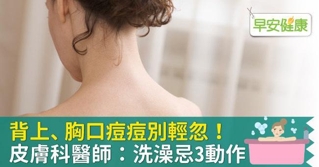 背上、胸口痘痘別輕忽!皮膚科醫師:洗澡忌3動作