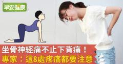 坐骨神經痛不止下背痛!專家:這8處疼痛都要注意