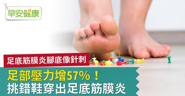 足部壓力增57%!挑錯鞋穿出足底筋膜炎