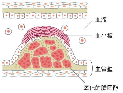 動脈硬化的血管
