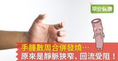 手腫數周合併發燒…原來是靜脈狹窄、回流受阻!