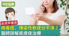 病毒疣擦藥膏有用嗎?醫師詳解皮膚疣治療