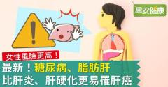 最新!糖尿病、脂肪肝比肝炎、肝硬化更易罹肝癌