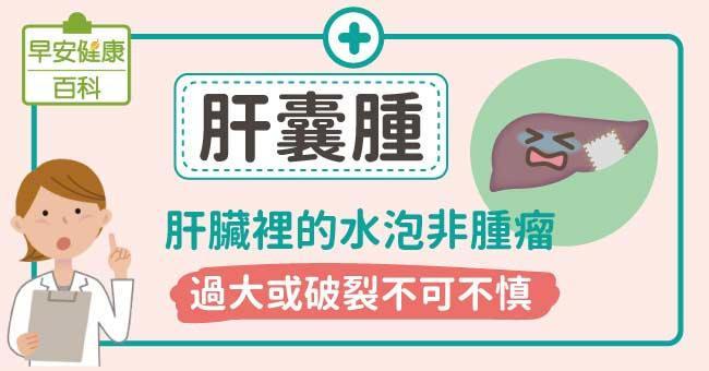 肝囊腫:肝臟裡的水泡非腫瘤,過大或破裂不可不慎