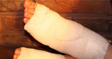燒燙傷術後完善照護