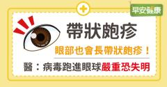 眼部也會長帶狀皰疹!醫:病毒跑進眼球嚴重恐失明