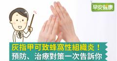 灰指甲可致蜂窩性組織炎!預防、治療對策一次告訴你
