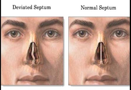 鼻塞,耳鼻喉