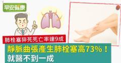 靜脈曲張產生肺栓塞高73%!就醫不到一成