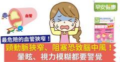 頸動脈狹窄、阻塞恐致腦中風!暈眩、視力模糊都要警覺