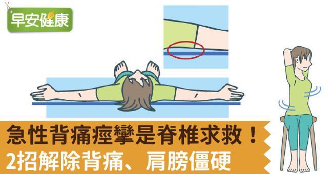 急性背痛痙攣是脊椎求救!2招解除背痛、肩膀僵硬