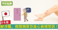 腳浮腫、夜間頻尿恐是心衰竭警訊!