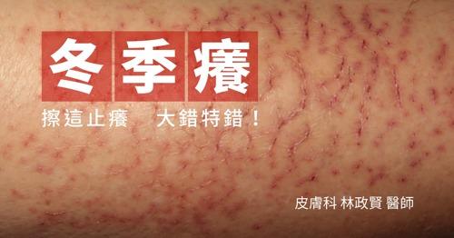 皮膚乾癢,冬季癢,濕疹