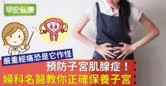 預防子宮肌腺症!婦科名醫教你正確保養子宮