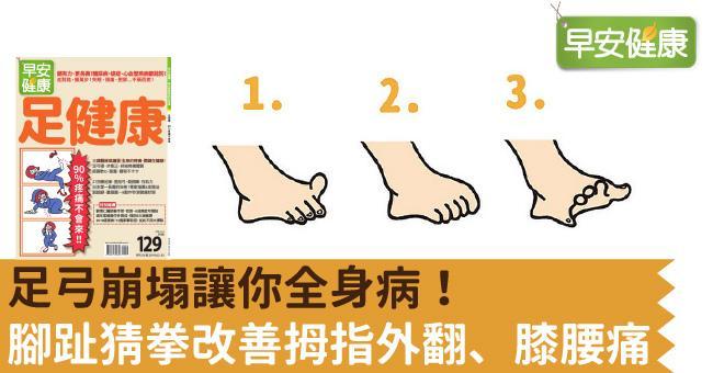 足弓崩塌讓你全身病!腳趾猜拳改善拇指外翻、膝腰痛