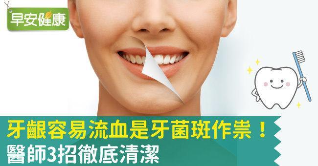 牙齦流血原因是牙菌斑作祟!醫師:解決口臭就要用對牙膏