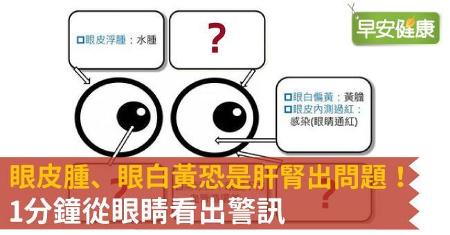 眼皮腫、眼白黃恐是肝腎出問題!從眼睛看出6大警訊