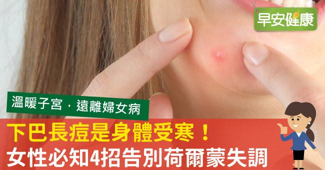 下巴一直長痘痘該怎麼改善?看懂下巴痘痘的身體警訊,4招告別荷爾蒙失調