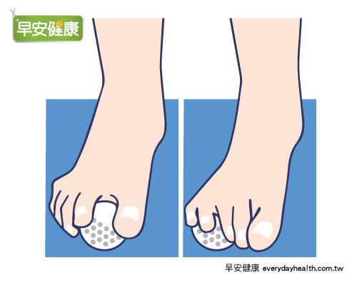 腳趾抓高爾夫球改善膝蓋痛