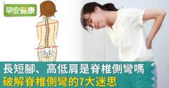 長短腳、高低肩是脊椎側彎嗎?破解脊椎側彎的7大迷思