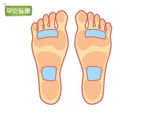 腳底貼布瘦身法