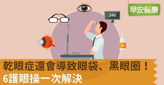 乾眼症還會導致眼袋、黑眼圈!6護眼操一次解決