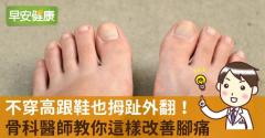 不穿高跟鞋也拇趾外翻!骨科醫師教你這樣改善腳痛