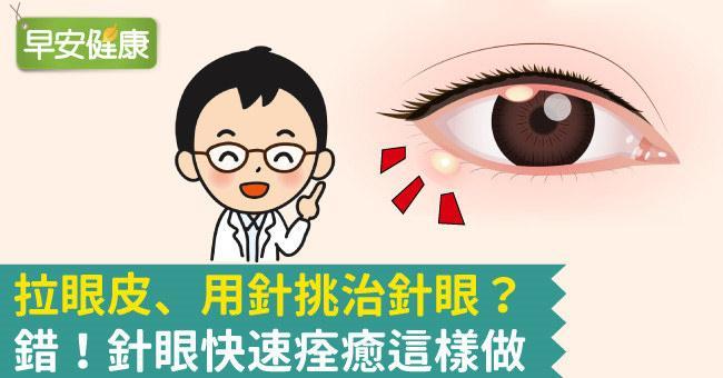長針眼怎麼辦?針眼熱敷還冰敷?緩解針眼症狀最實用5招快快治好
