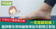 一走路腳就痛!醫師教你用OK繃做拇指外翻矯正鞋墊