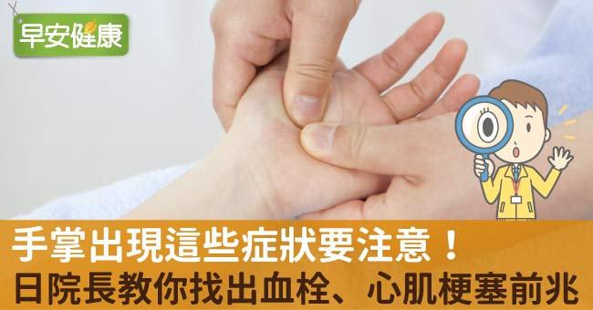 手掌出現這些症狀要注意!日院長教你找出血栓、心肌梗塞前兆!