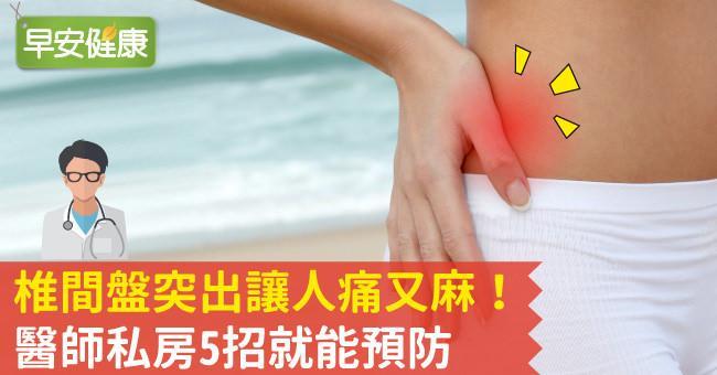 椎間盤突出讓人痛又麻!醫師私房5招就能預防