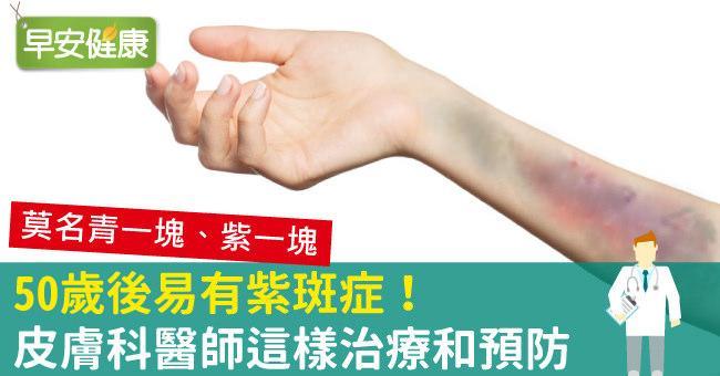 50歲後,紫斑症找上門!手臂莫名瘀青,紫斑症如何改善?
