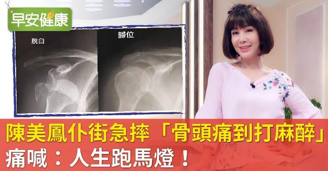 陳美鳳仆街急摔「骨頭痛到打麻醉」痛喊:人生跑馬燈!