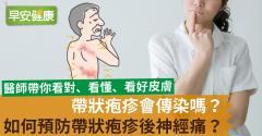帶狀疱疹會傳染嗎?如何預防帶狀疱疹後神經痛?