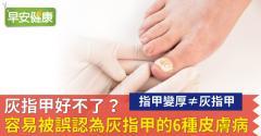 灰指甲好不了?容易被誤認為灰指甲的6種皮膚病