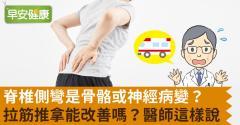 脊椎側彎是骨骼或神經病變?拉筋推拿能改善嗎?醫師這樣說