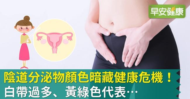 陰道分泌物顏色暗藏健康危機!白帶過多、黃綠色代表…