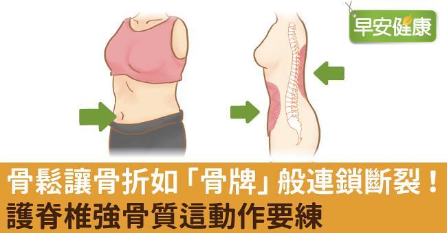 骨鬆讓骨折如「骨牌」般連鎖斷裂!護脊椎強骨質這動作要練
