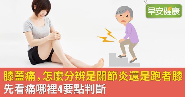 膝蓋痛,怎麼分辨是關節炎還是跑者膝?先看痛哪裡4要點判斷