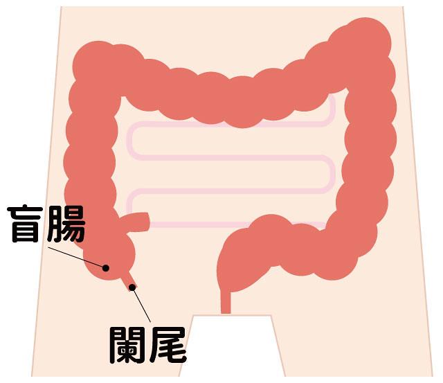 盲腸位置、闌尾位置