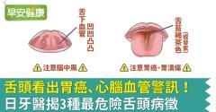 舌頭看出胃癌、心腦血管警訊!日牙醫揭3種最危險舌頭病徵