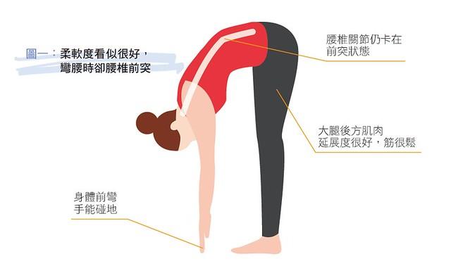 柔軟度看似很好,彎腰時卻腰椎前突