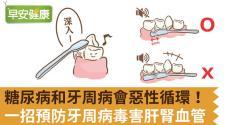 糖尿病和牙周病會惡性循環!一招預防牙周病毒害肝腎血管