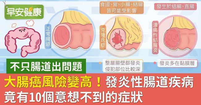 大腸癌風險變高!發炎性腸道疾病竟有10個意想不到的症狀