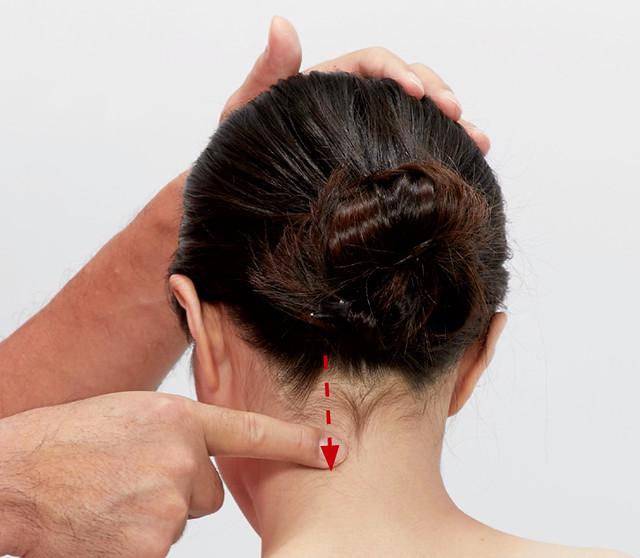 頭痛偏頭痛:提肩胛肌的按摩
