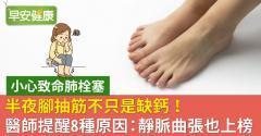 半夜腳抽筋不只是缺鈣!醫師提醒8種原因:靜脈曲張也上榜