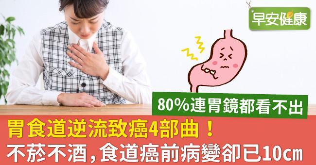 胃食道逆流致癌4部曲!不菸不酒,食道癌前病變卻已10cm