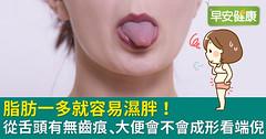 脂肪一多就容易濕胖!從舌頭有無齒痕、大便會不會成形看端倪