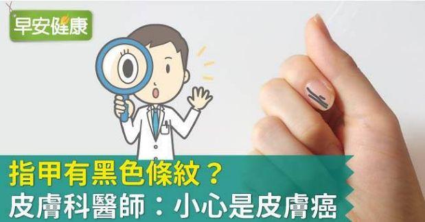 皮膚癌徵兆!皮膚科醫師:指甲有黑線警惕皮膚癌