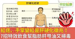 紅痣、手掌變紅是肝硬化徵兆!7招特效飲食幫脂肪肝甩油又掃毒